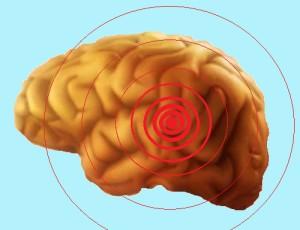 cancer du cerveau agressif